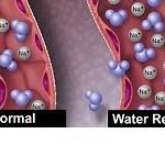 چگونه می توان از شر اضافه آب بدن ظرف ۳ روز خلاص شویم