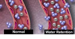 اضافه آب بدن
