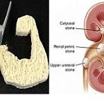 خوردن بی رویه پروتئین چه خطراتی را برای شما به همراه دارد؟