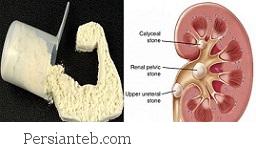 خوردن بی رویه پروتئین
