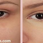 چگونه به کمک جوش شیرین از شر سیاهی زیر چشم خلاص شویم