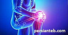 پیشگیری از بروز درد مفاصل