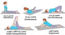 درمان سریع درد سیاتیک