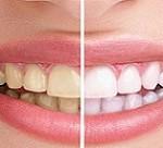 برق انداختن دندان زرد با این روش عالی!