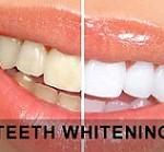 سه روش معرکه برای حذف رنگ زرد دندان