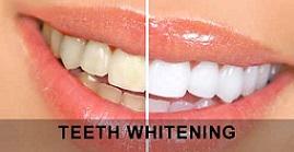 حذف رنگ زرد دندان