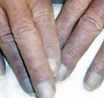 سیانوز یکی از چندین علائم بیماری قلبی!