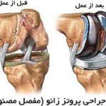 آشنایی با عمل جراحی پروتز زانو