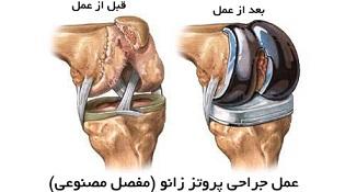عمل جراحی پروتز زانو