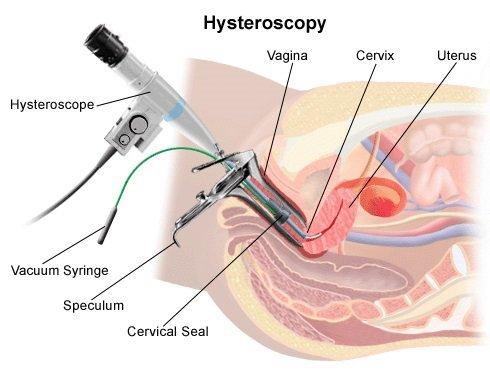 هیستروسکوپی 2