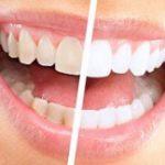 آشنایی با علت بدرنگی دندان + درمان
