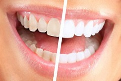 بدرنگی دندان