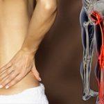 درمان بیماری سیاتیک با روش های خانگی
