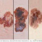 خال سرطانی چه شکلی می باشد؟