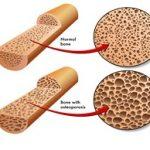 خوراکی های مضر برای استخوان ها