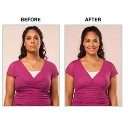 کوچک کردن سینه ها