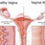 بیماری آتروفی واژن ، علائم و درمان آن