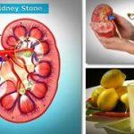 درمان بیماری سنگ کلیه با طب سنتی