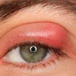بیماری گل مژه چیست و چه افرادی به آن مبتلا می شوند؟