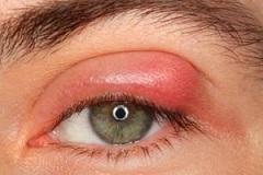 بیماری گل مژه