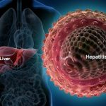 بررسی بیماری هپاتیت و انواع آن