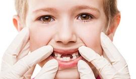 خراب شدن دندان های شیری