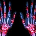 عوامل به وجود آورنده درد مفاصل چیست؟