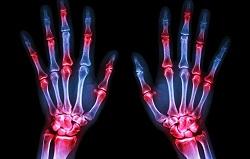 عوامل به وجود آورنده درد مفاصل