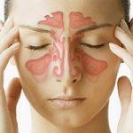 موثرترین درمان سینوزیت را بشناسید