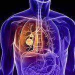 روش های تغذیه موثر برای سرطان ریه