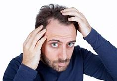 درمان طبیعی ریزش موهای چرب