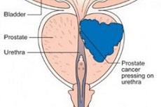 نشان دهنده سرطان پروستات