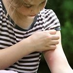 علت های نیش زدن پشه در فصل تابستان