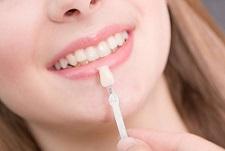 لمینیت های دندانی