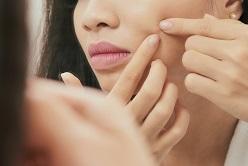 7 نشانه سرطان پوست