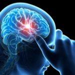 مسکن های مفید برای تسکین سردردهای عصبی