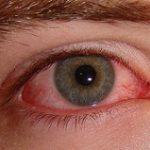 جلوگیری از عفونت چشم با این موارد