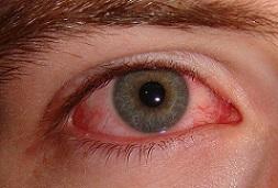 جلوگیری از عفونت چشم