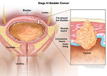 سرطان پروستات در مردان