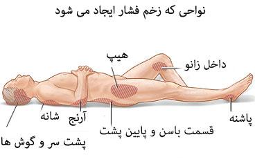 زخم بستر ، درمان زخم بستر ، داروی زخم بستر