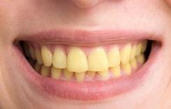 زردی دندان ، علت زرد شدن دندان