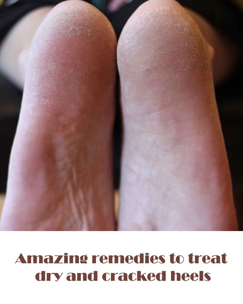 خشکی پوست پا ، درمان خشکی پوست پا