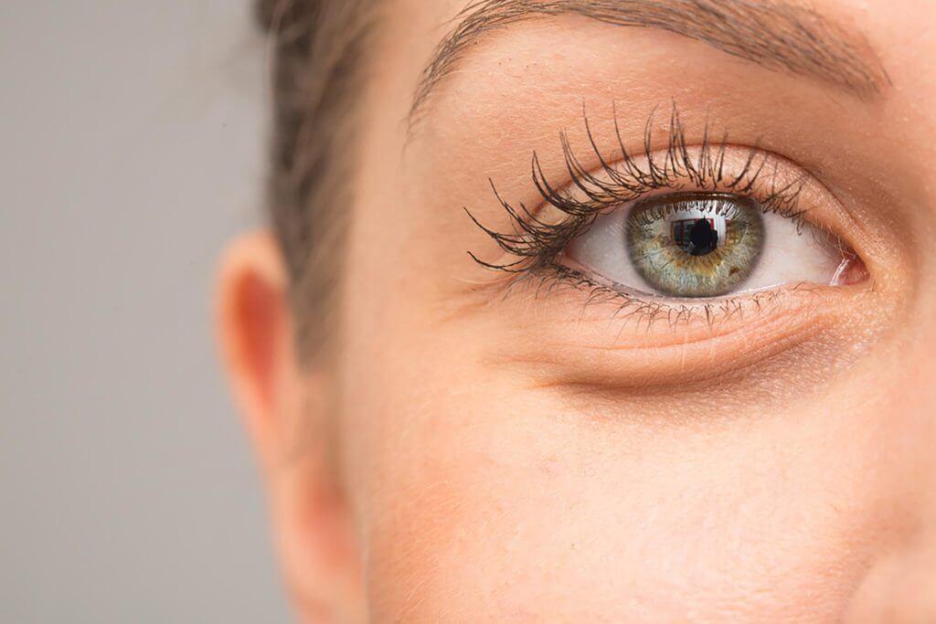 تیرگی زیر چشم ، درمان تیرگی زیر چشم