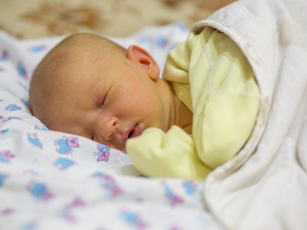 زردی نوزادان ، پیشگیری از زردی نوزادان