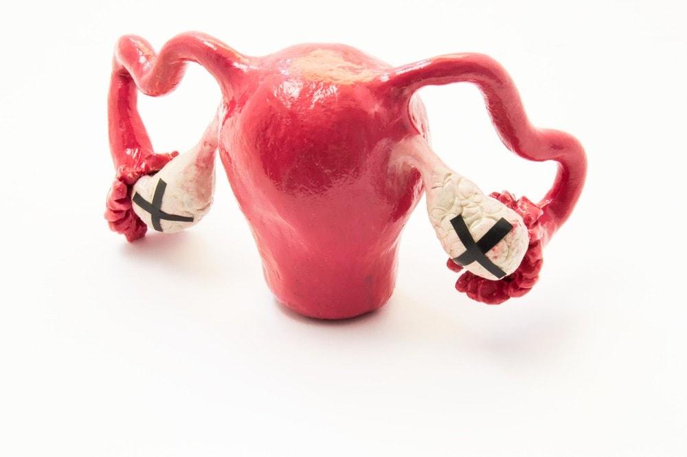 درد تخمدان ، علت درد تخمدان