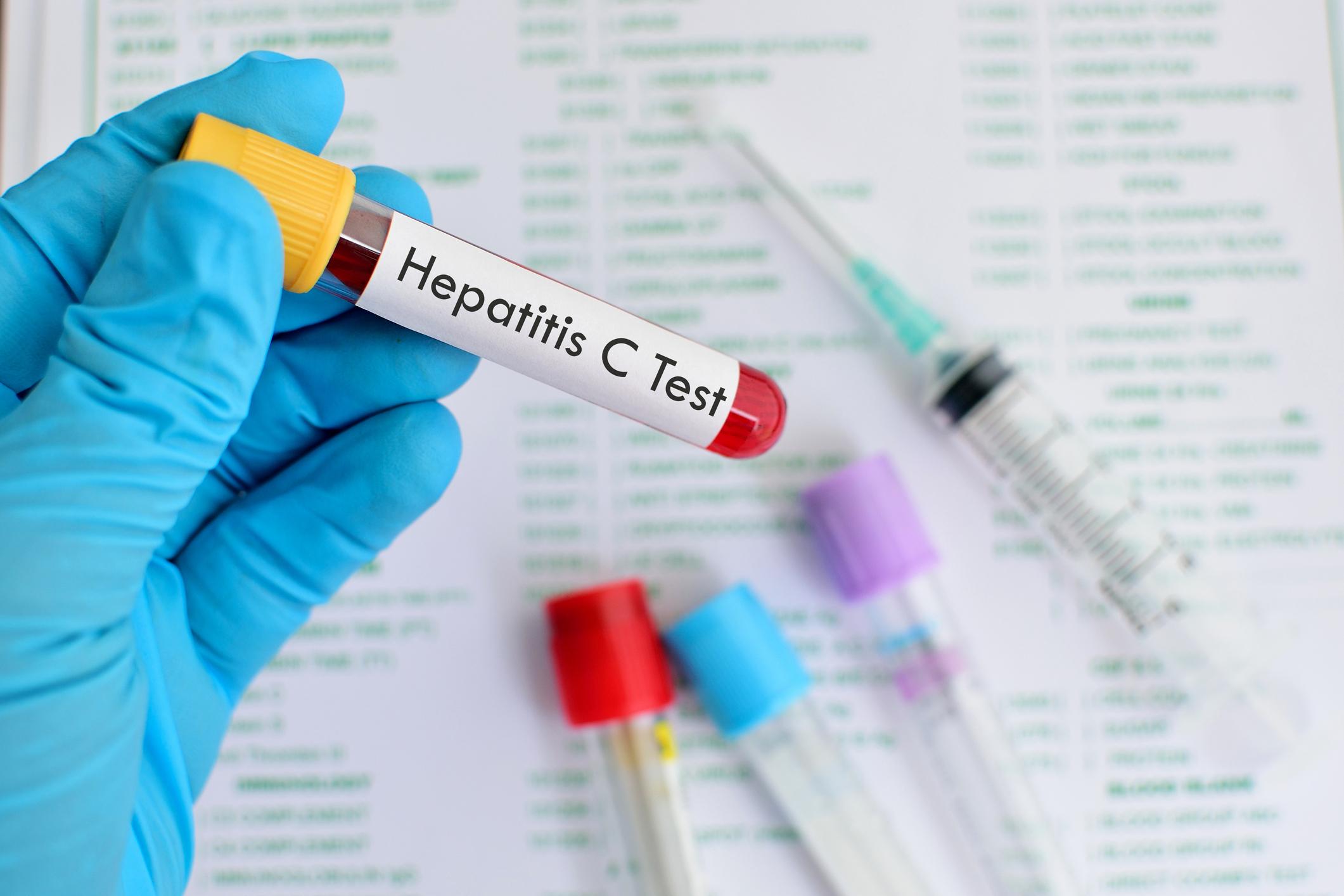 هپاتیت C ، درمان هپاتیت C