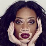 بیماری پیسی Vitiligo چیست؟