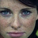 درمان کک و مک با لیزر امکان دارد؟