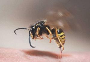 درمان زنبور گزیدگی با این روش ها