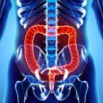 روش پزشکی پیشگیری از سرطان روده